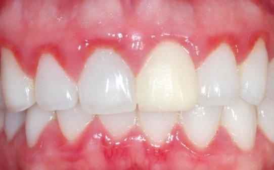 Parodontite e Gravidanza