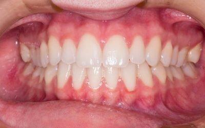 L'uso dei probiotici nella protezione del cavo orale